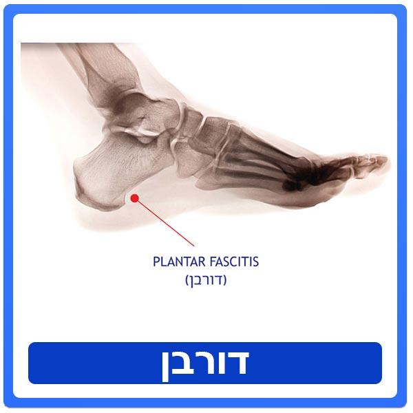 טיפול פיזיותרפיה בכאבים בעקב כף הרגל ובקשת האורכית -דורבן- PLANTAR FASCIITIS