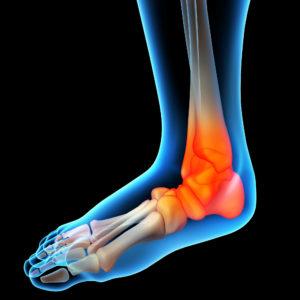 כאבים כרוניים בכף הרגל