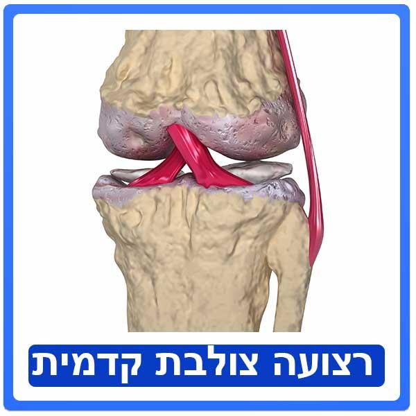 acl - שחזור רצועה צולבת קידמית
