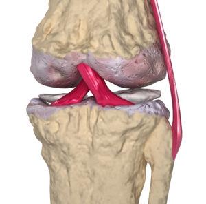פגיעות בסחוס המפרקי