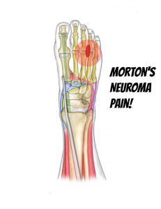 פציעות אופניים - נעל / פדל - מורטון נוירומה