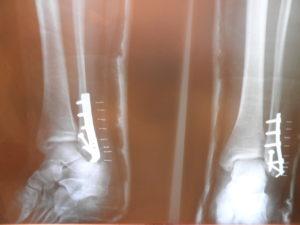 שיקום לאחר ניתוחים אורתופדיים